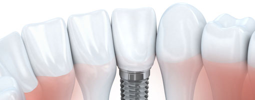 Dental Implants, Langley Dentist