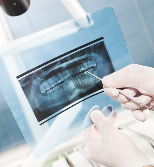 Dental X-Rays, Langley Dentist